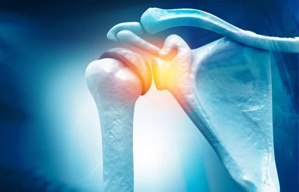 artroscopía de hombro en Interlomas