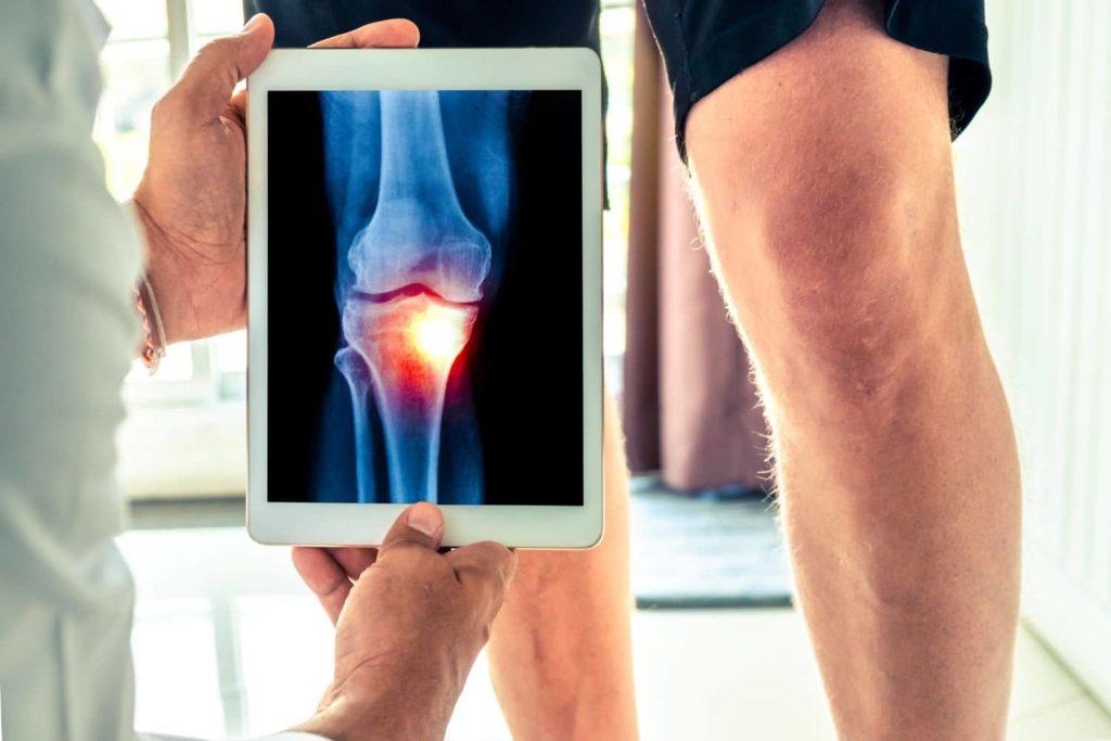 Especialista en dolor de rodilla