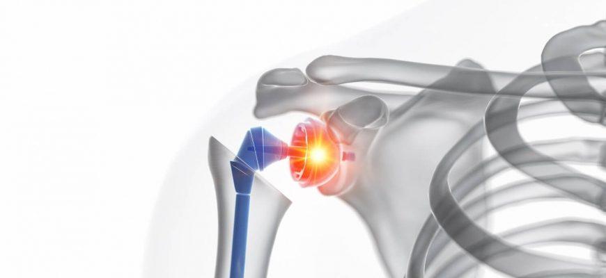 prótesis de hombro en Interlomas